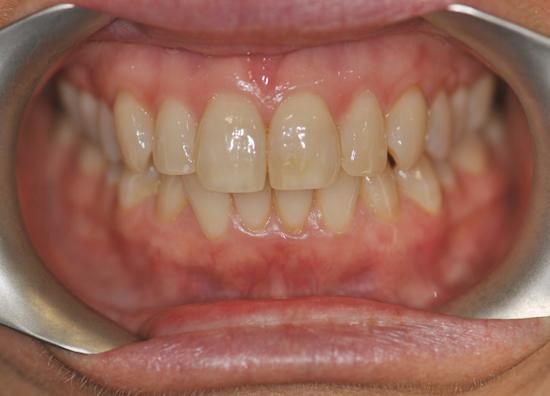 teeth whitening before